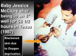 """Baby Jessica McClure after being in an 8"""" well for 58 1/2 hours in Texas (1987)"""
