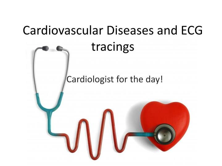 cardiovascular diseases and ecg tracings n.
