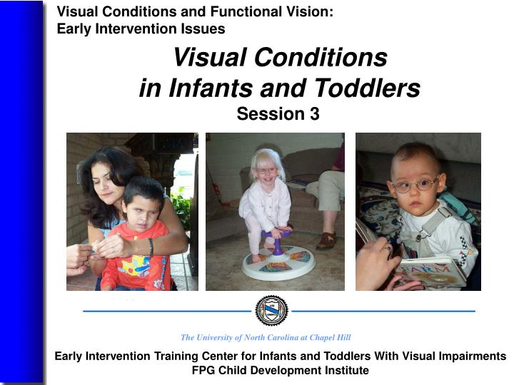 visual conditions in infants and toddlers session 3 n.