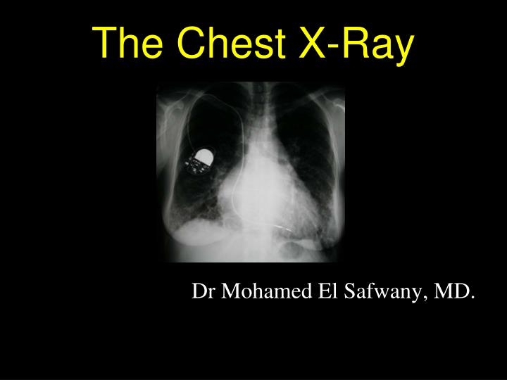 the chest x ray n.