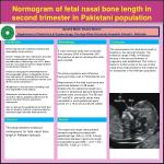 Normogram  of  fetal  nasal bone length in second trimester in Pakistani population