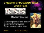 Fractures of the Middle Third of the Face
