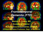 Frontotemporal Dementia (FTD)