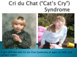 "Cri du Chat (""Cat's Cry"") Syndrome"