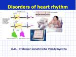 Disorders of heart rhythm