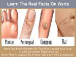 Learn The Real Facts On Warts